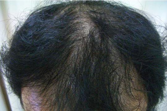 AGA(男性型脱毛症)とは?~凶悪な男性ホルモン「DHT」が原因!