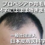 M字には育毛剤は効かない